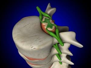Θέση του νωτιαίου μυελού στον σπονδυλικό σωλήνα - σπονδυλική στήλη