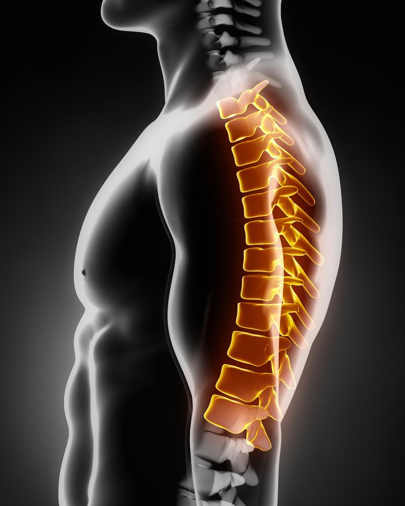 Bandscheibenvorfall Brustwirbelsäule | Neurochirurg Dr. Christopoulos