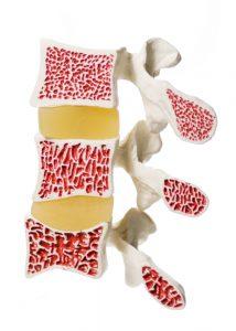 Fortschreitende Osteoporose an der Wirbelsäule