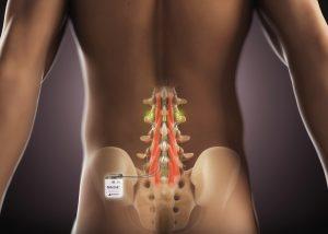 ReActiv8 implantiertes Neurostimulations-System im Lendenwirbelbereich
