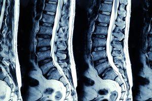 Kernspintomographie - Beispiel eines Scans der Wirbelsäule