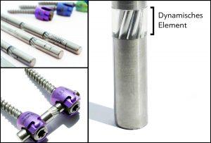 Schrauben-Stab-System bei der dynamischen Stabilisierung der Wirbelsäule