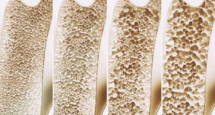 Was ist eine Osteoporose? Krankheitsbild bei Knochenschwund