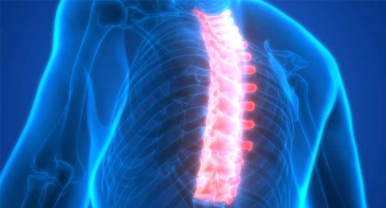 Bandscheibenvorfall Brustwirbelsäule
