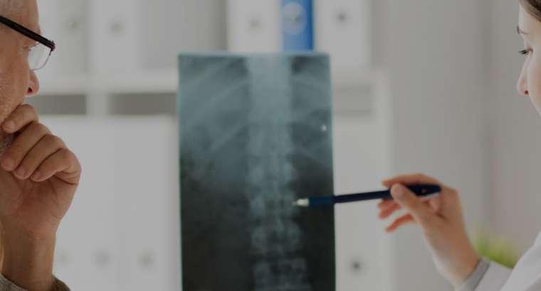 Συντηρητική θεραπεία της σπονδυλικής στήλης: Αποφυγή χειρουργικής επέμβασης